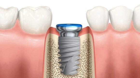 6 lucruri despre implanturi dentare pe care dentistul nu ti le spune. Numarul 3 te va uimi!