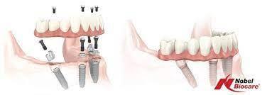 Implanturile dentare Nobel