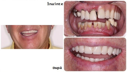 inainte si dupa un implant dentar