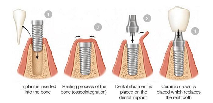cum sunt puse implanturile dentare