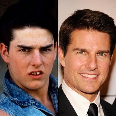 Tom Cruise dental implant