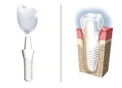 implant dentar ceramic