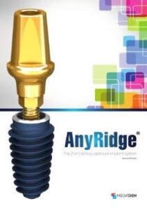 implant dentar anyridge