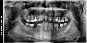 Radiografie panoramica pentru turismul dentar