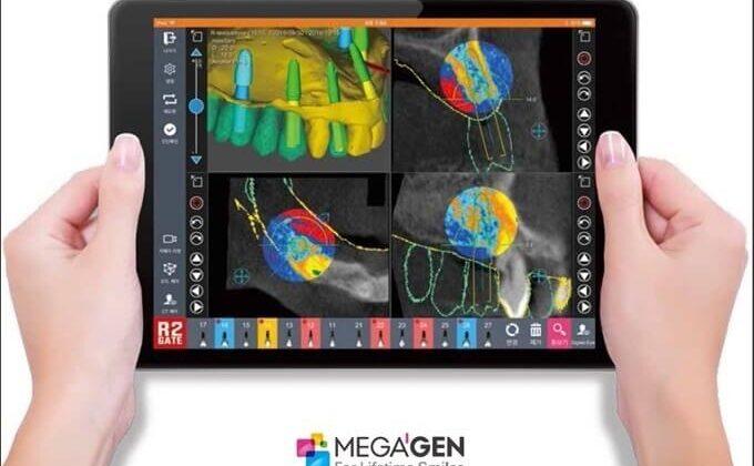 4 avantaje si 7 beneficii ale utilizarii ghidului chirurgical in implantologie