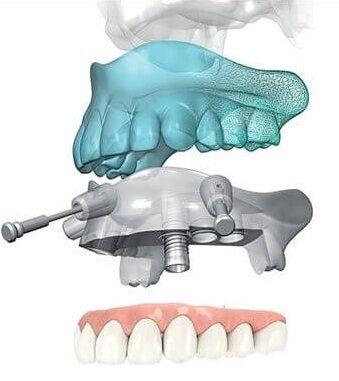 implantologia dentara