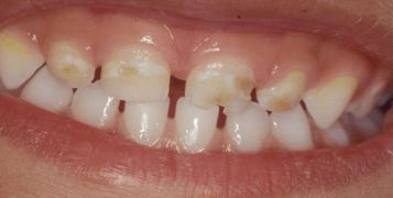 Demineralizarea dintilor la copii