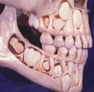 Dintii permanenti sub dintii de lapte
